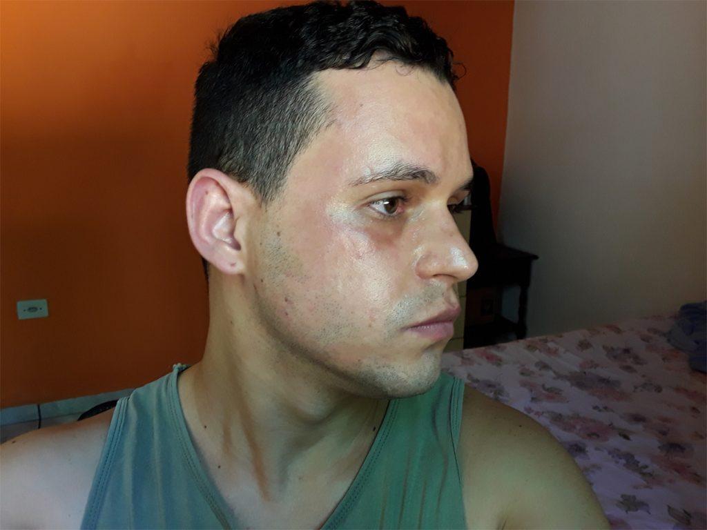 alergia a máscara avenca