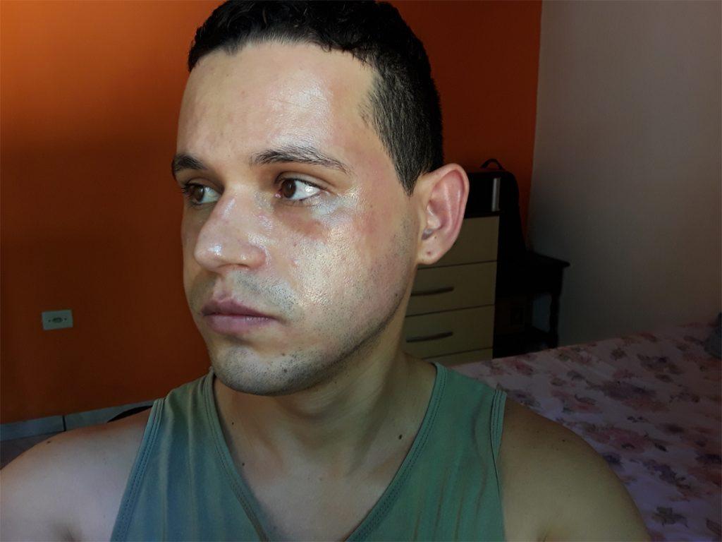 máscara da avenca deu alergia
