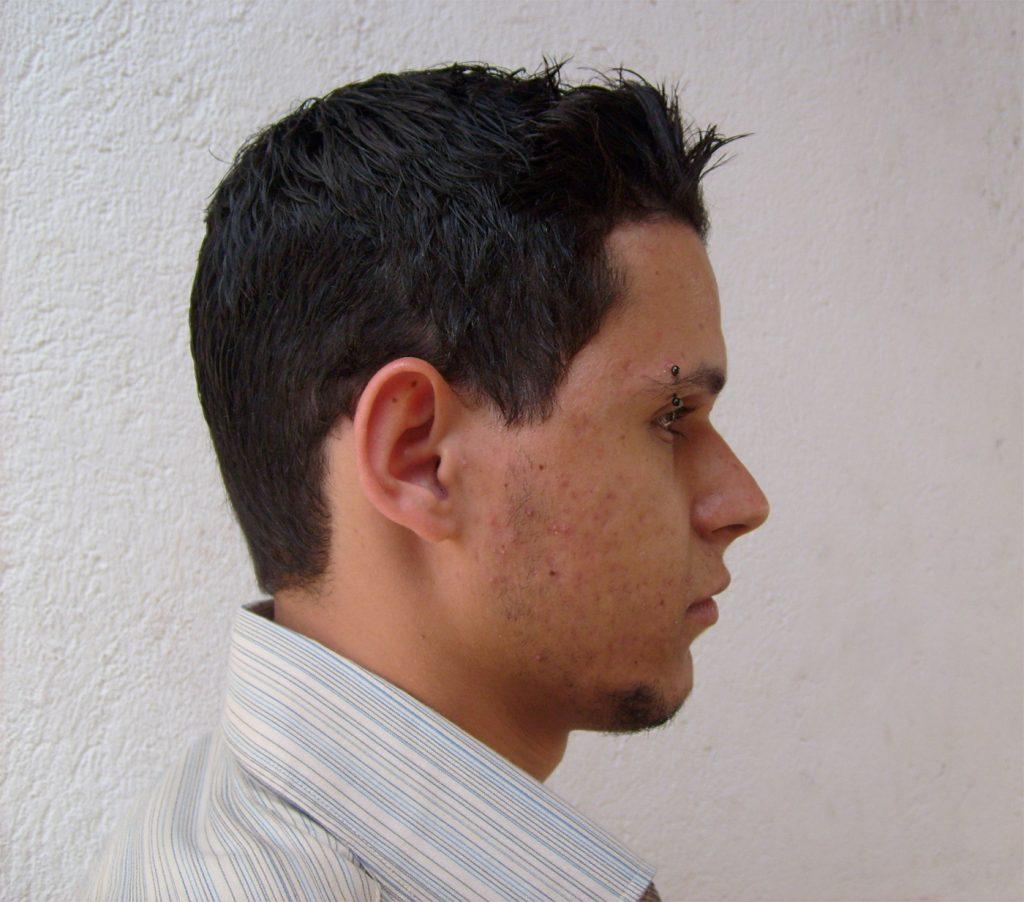 Roacutan para acne - Marco Macei