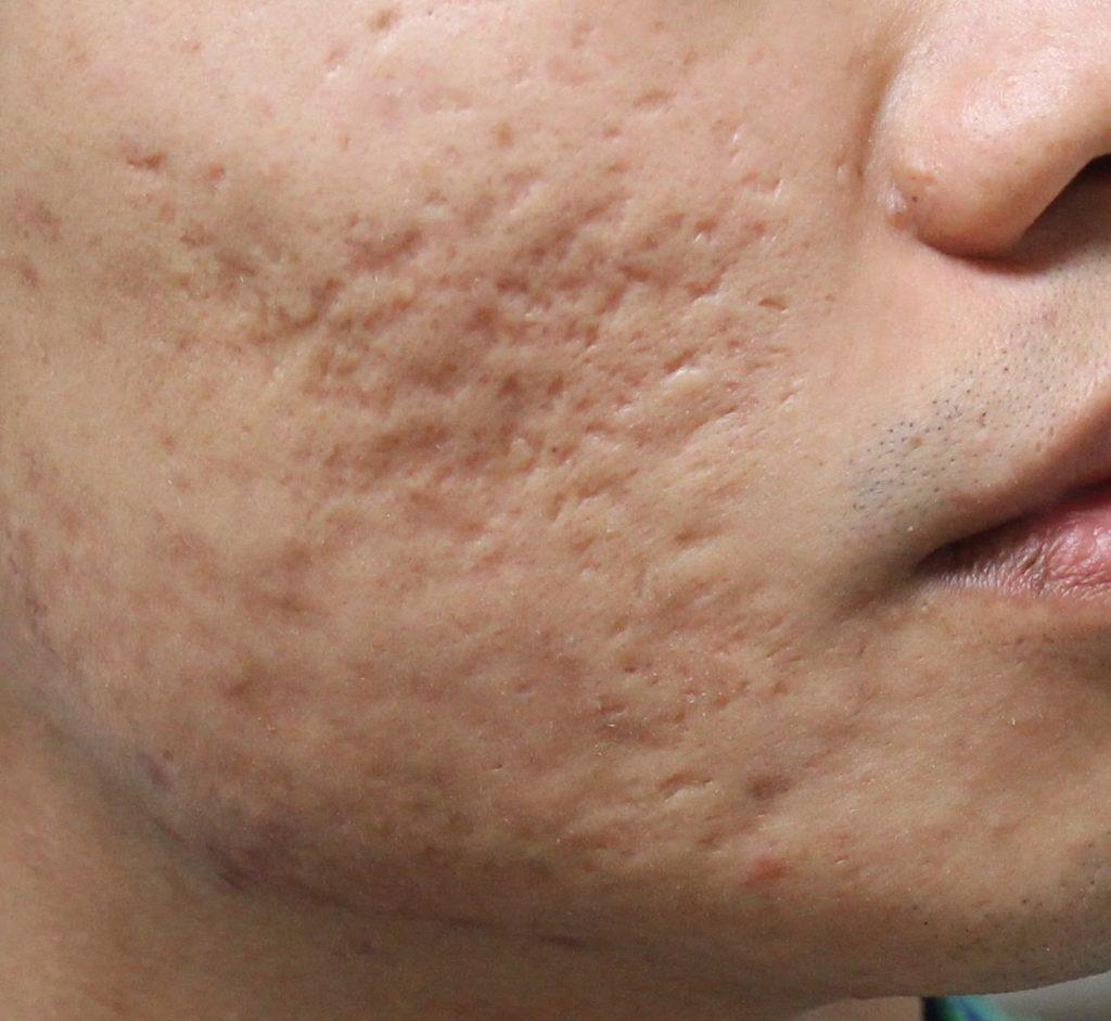 Cicatrizes de acne dermaroller