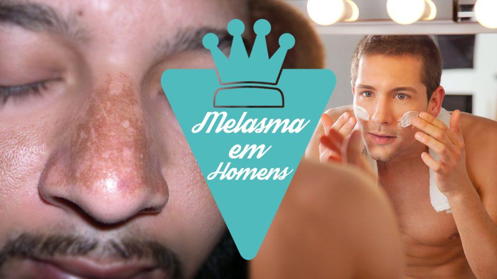 Como cuidar do melasma em homens