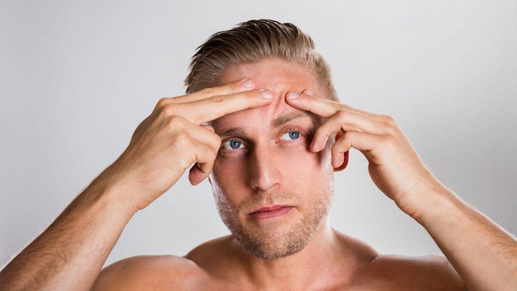 Tratamento da acne dicas