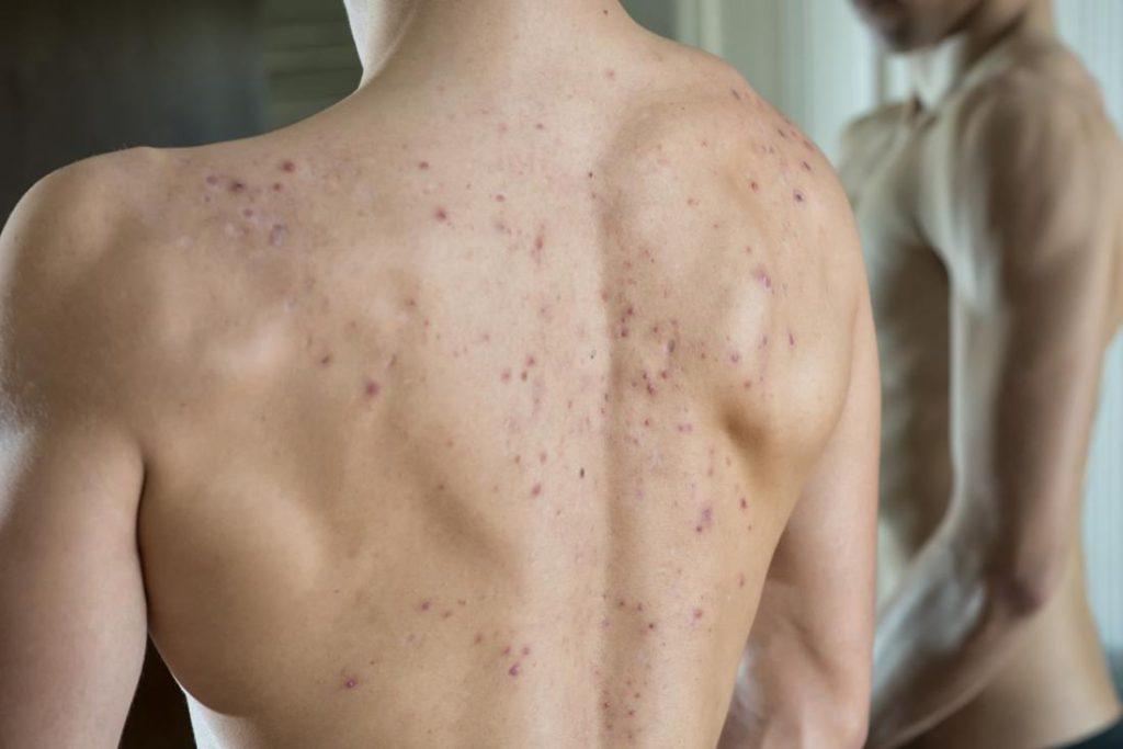 Como tratar as espinhas nas costas